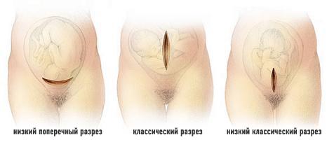 Видео как делают операцию кесарево сечение
