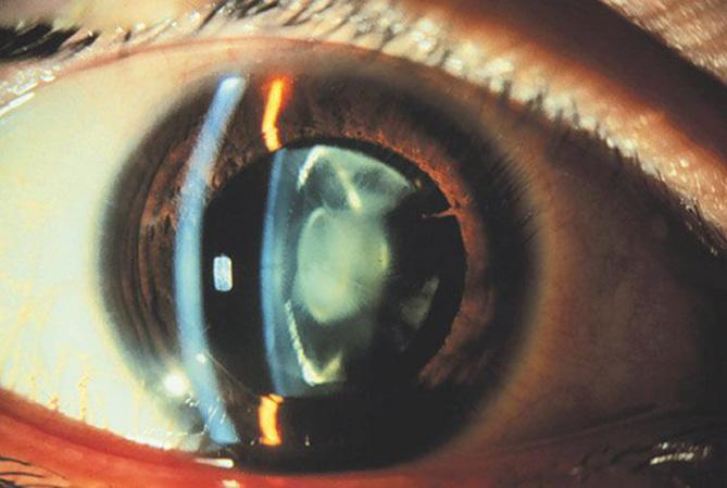 nucleair cataract