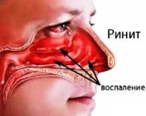 вазомоторного ринита аллергия неблагоприятный